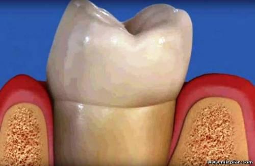 зубной камень, стоматология